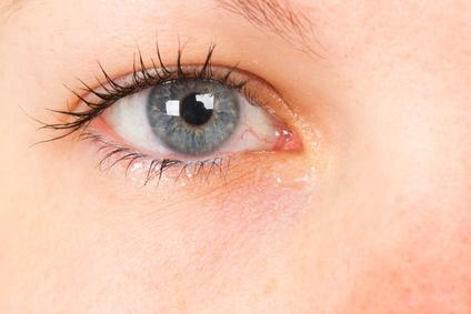 Augenentzündungen