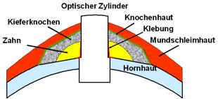 InfografikKeraprothese