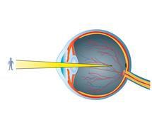 Kurzsichtigkeit (Myopie)
