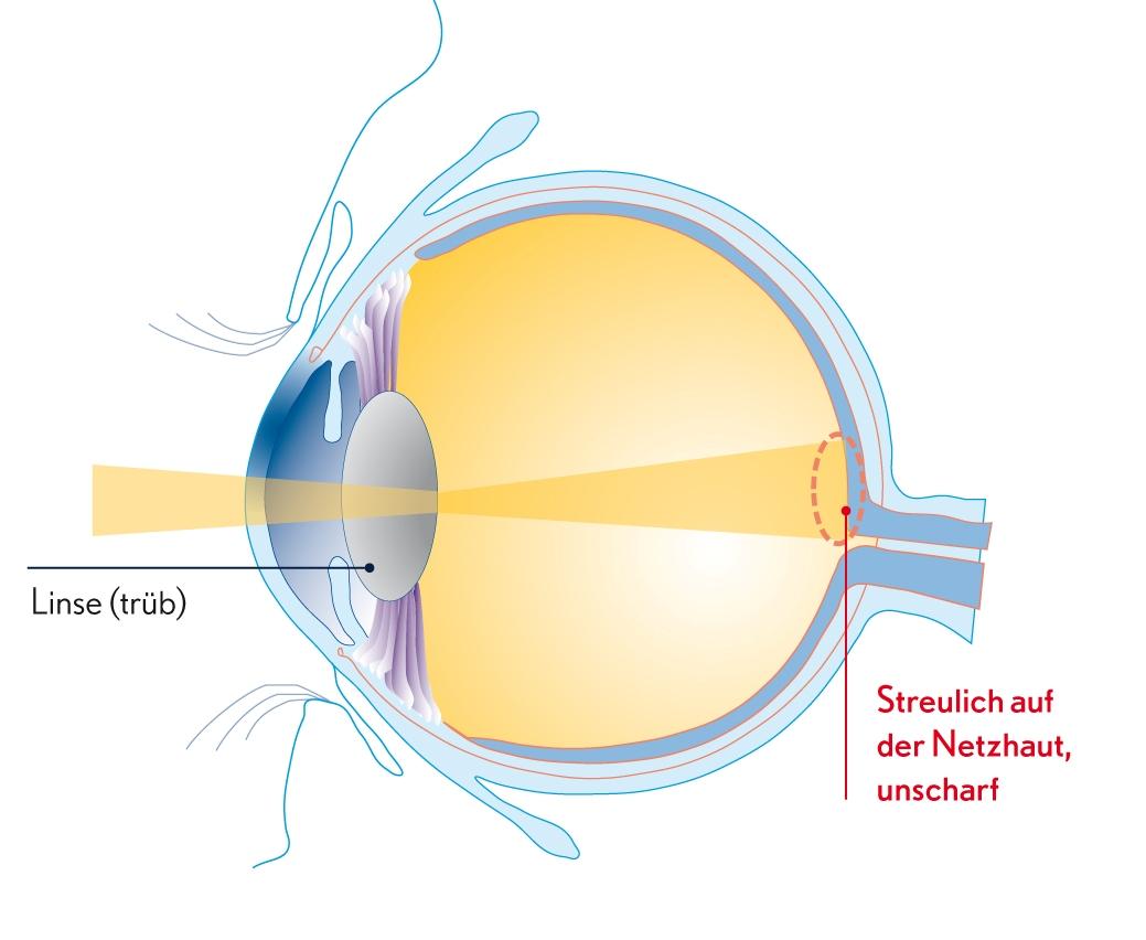 Augenerkrankungen - eine Übersicht auf operationauge.de