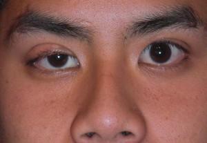 Augenliedzucken