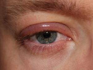 ooglid rood en gezwollen