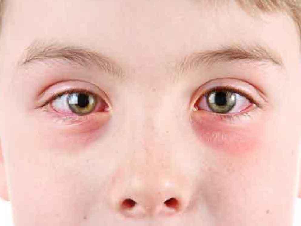 Brennende Augen