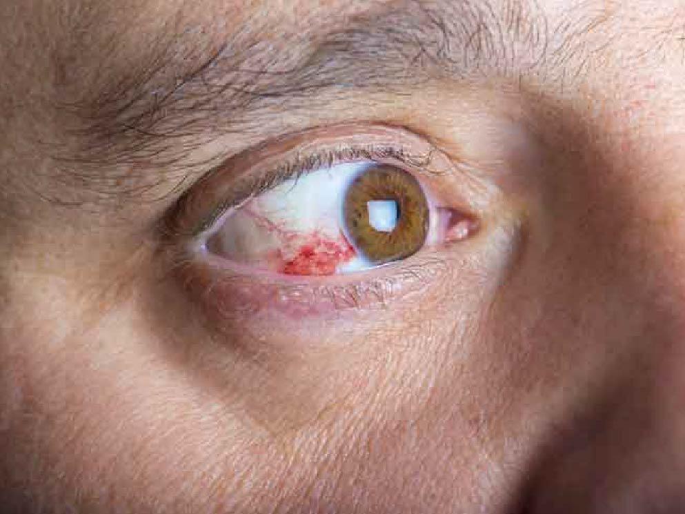 Hornhautentzündung Keratitis