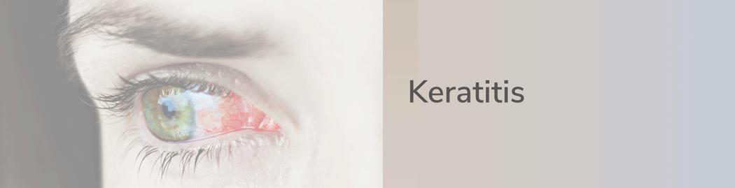 Keratitis Hornhautentzündung