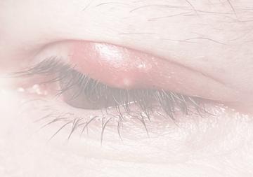 Lidrandentzündung Blepharitis