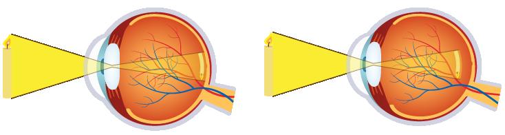 Kurzsichtigkeit Myopie